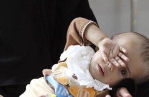 یک میلیون کودک در افغانستان از سوءتغذیه رنج می برند